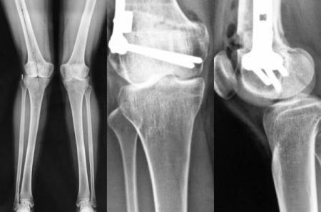 """Osteotomia corrige joelhos """"tortos"""""""