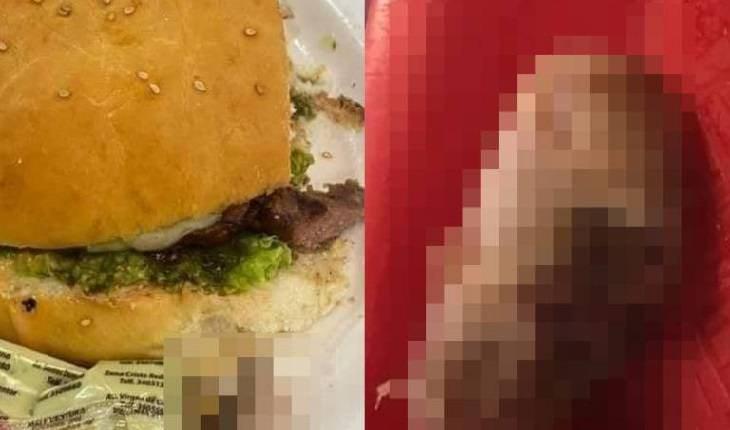 Mulher encontra dedo humano dentro de sanduíche